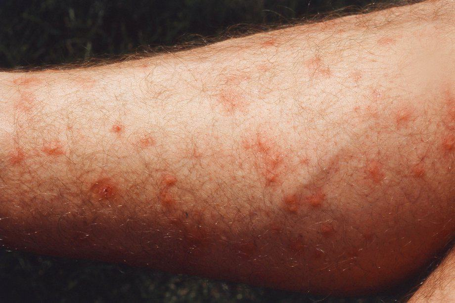 Applying First Aid for Biting Midges | Australia Wide First Aid